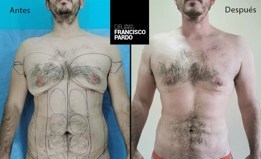 Ginecomastias – Dr Francisco Pardo